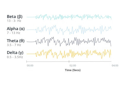 Image depicting EEG waves recorded in a time series