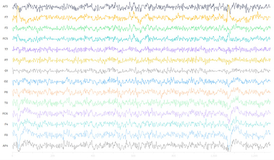 Image depicting EEG waves recorded digitally