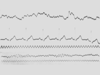 Image depicting the first ever eeg waves recording