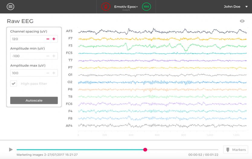 software Image showing a screenshot of eeg monitoring software