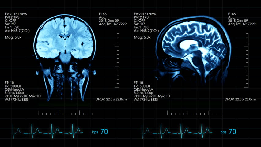 Image depicts data retrieved from an MRI brain scan.